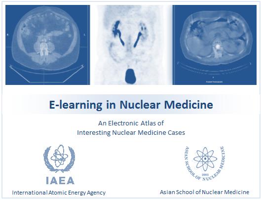 nuclear_medicine